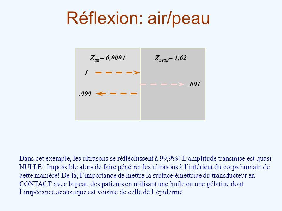 Réflexion: air/peau Zair= 0,0004 Zpeau= 1,62 1 .999 .001