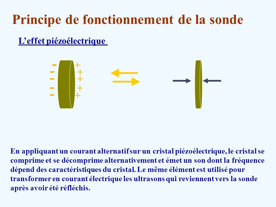 Echographie et ultra sons ppt video online t l charger for Groupe electrogene principe de fonctionnement