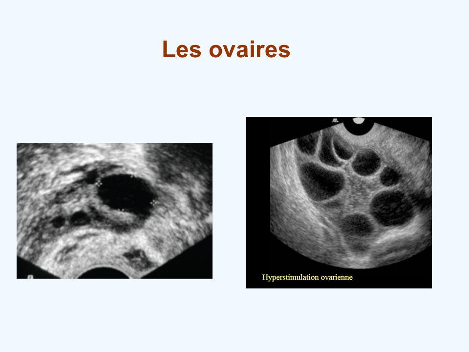 Les ovaires