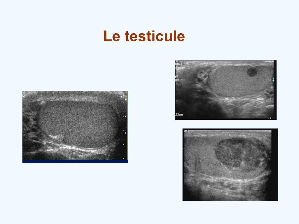 Le testicule