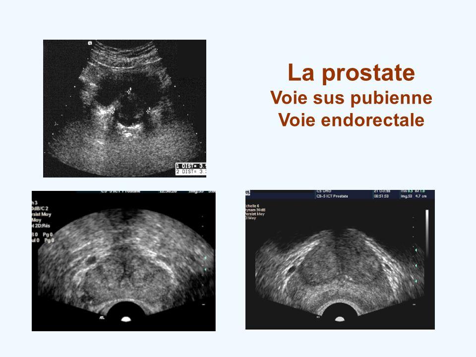 La prostate Voie sus pubienne Voie endorectale