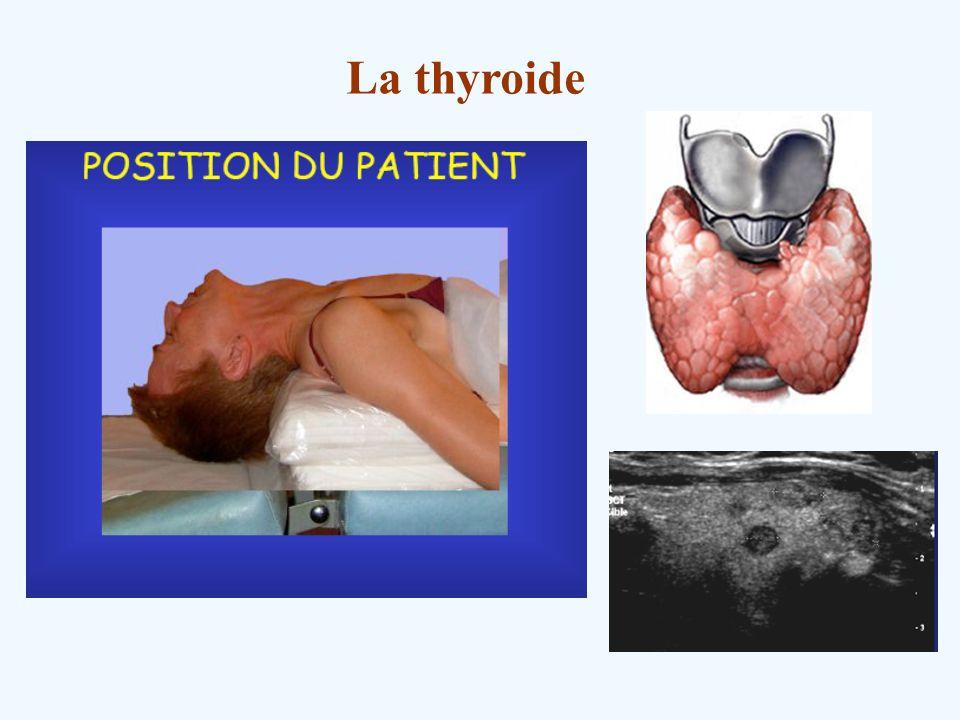 La thyroide