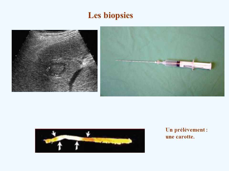 Les biopsies Un prélèvement : une carotte.
