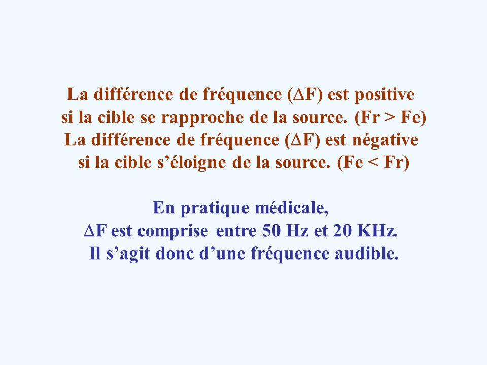 La différence de fréquence (DF) est positive