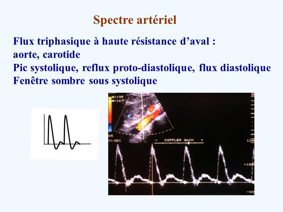 Spectre artériel Flux triphasique à haute résistance d'aval :