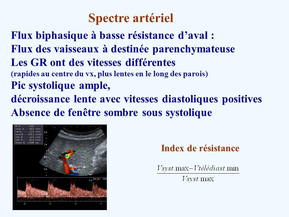 Spectre artériel Flux biphasique à basse résistance d'aval :