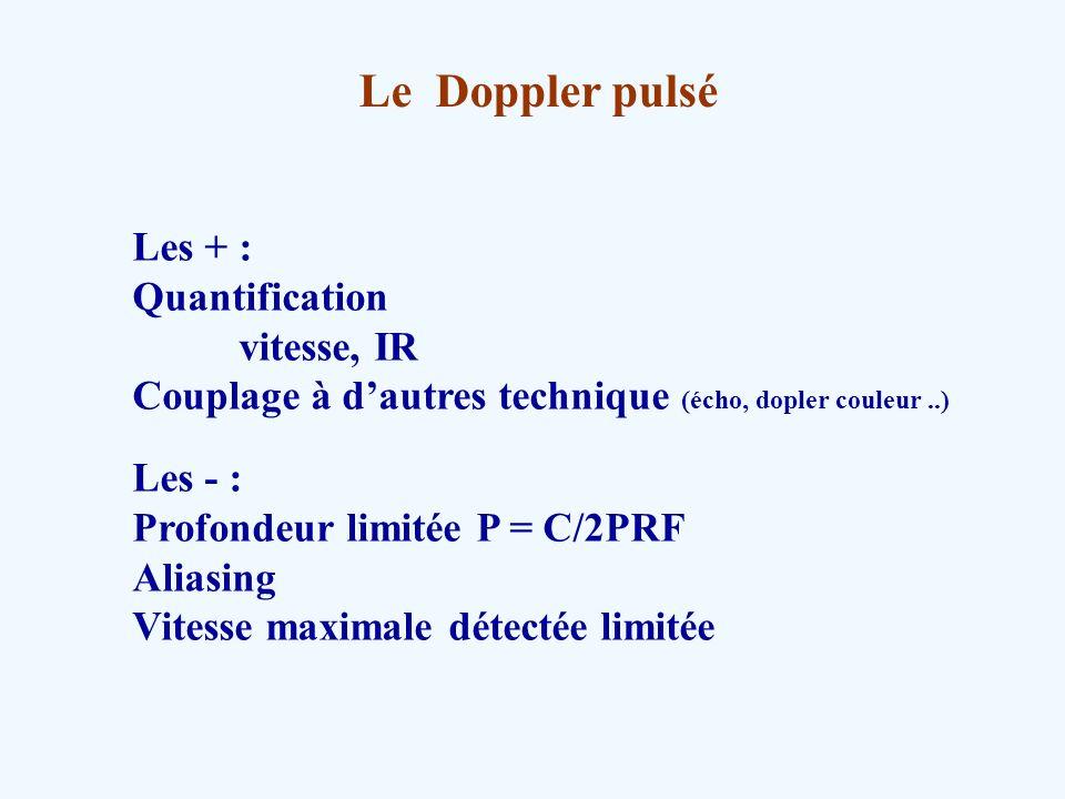 Le Doppler pulsé Les + : Quantification vitesse, IR