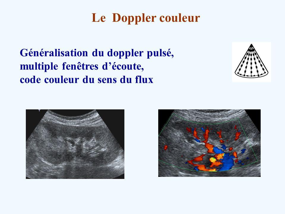 Le Doppler couleur Généralisation du doppler pulsé,