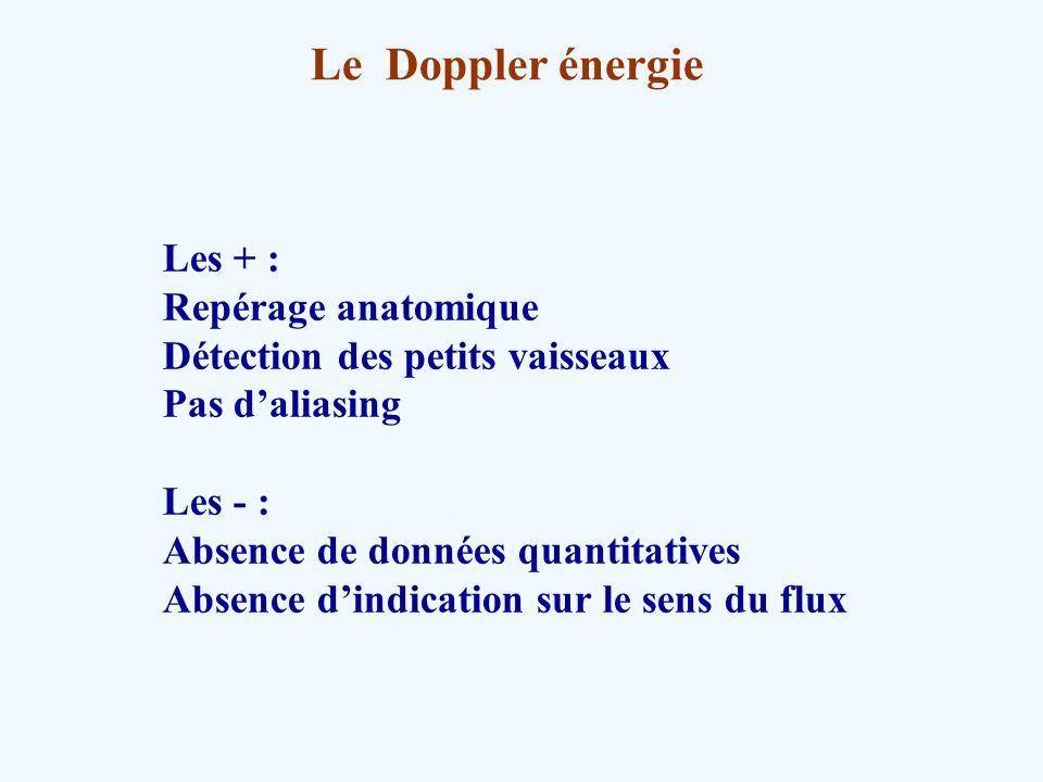 Le Doppler énergie Les + : Repérage anatomique