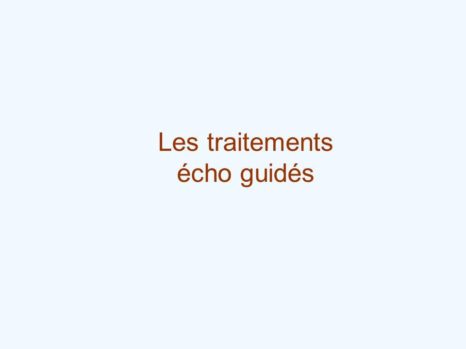 Les traitements écho guidés