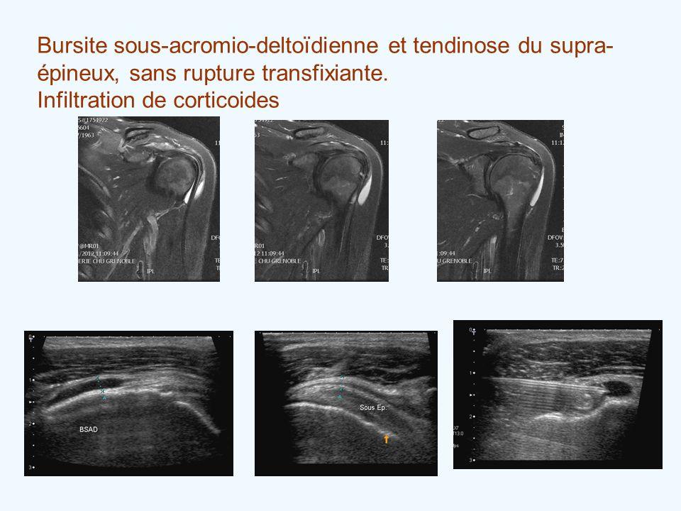 Bursite sous-acromio-deltoïdienne et tendinose du supra-épineux, sans rupture transfixiante.