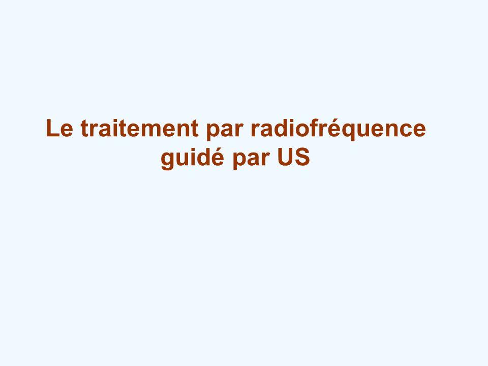 Le traitement par radiofréquence
