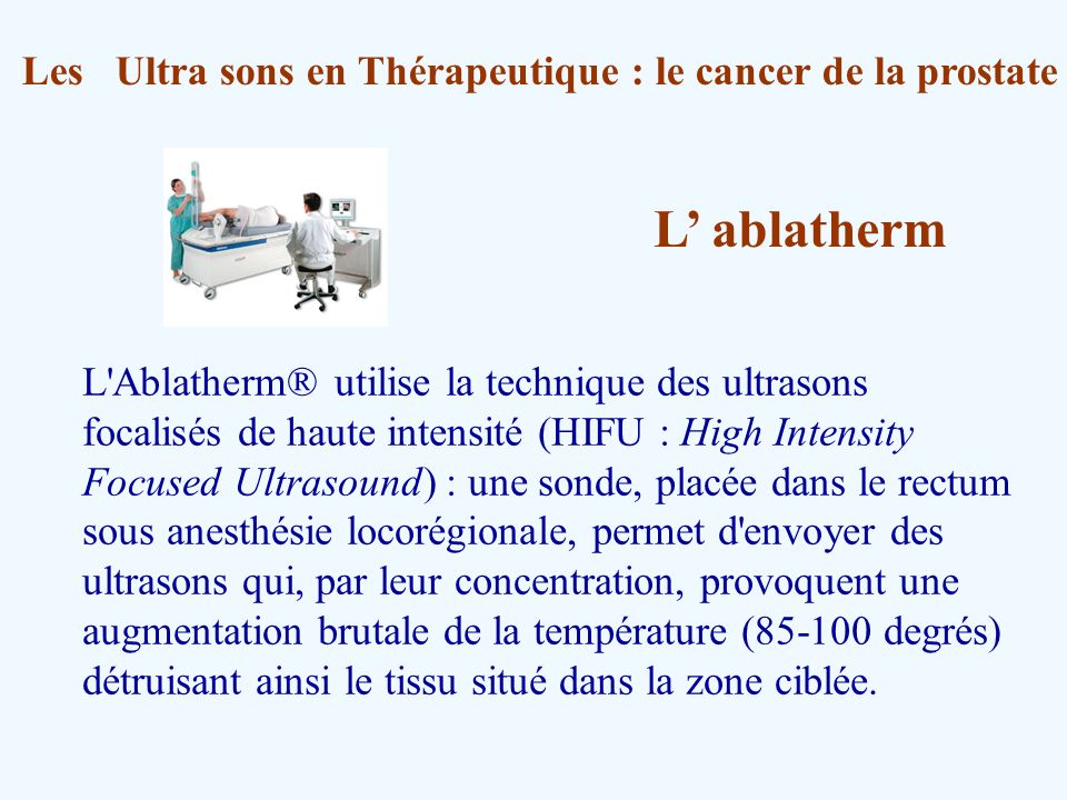 Les Ultra sons en Thérapeutique : le cancer de la prostate