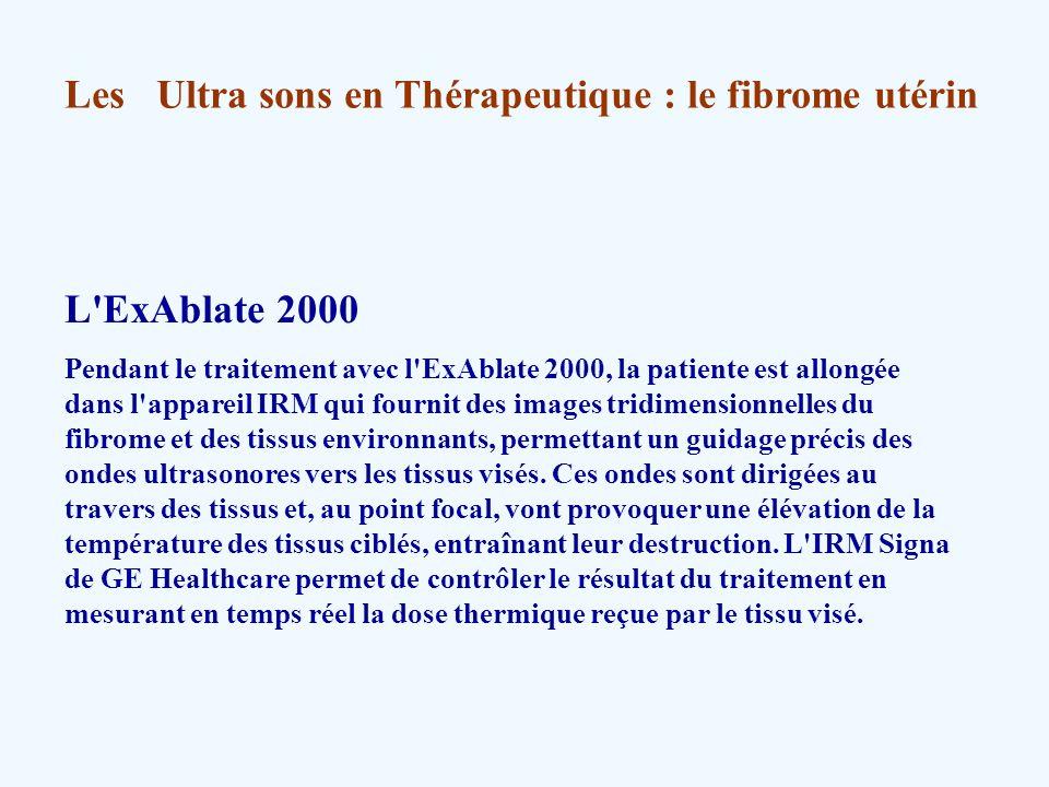 Les Ultra sons en Thérapeutique : le fibrome utérin