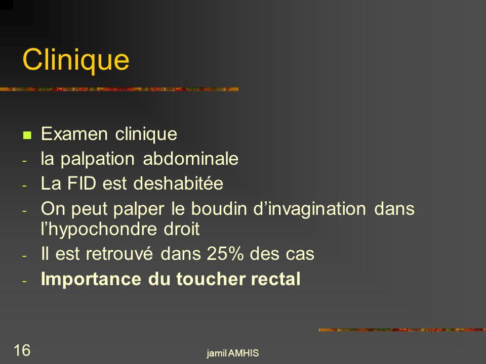 Clinique Examen clinique la palpation abdominale La FID est deshabitée