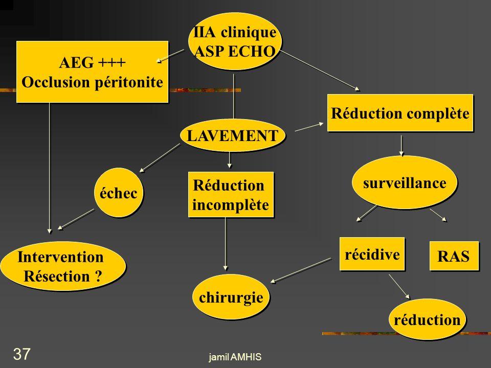 IIA clinique ASP ECHO AEG +++ Occlusion péritonite Réduction complète