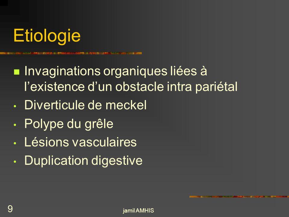 Etiologie Invaginations organiques liées à l'existence d'un obstacle intra pariétal. Diverticule de meckel.