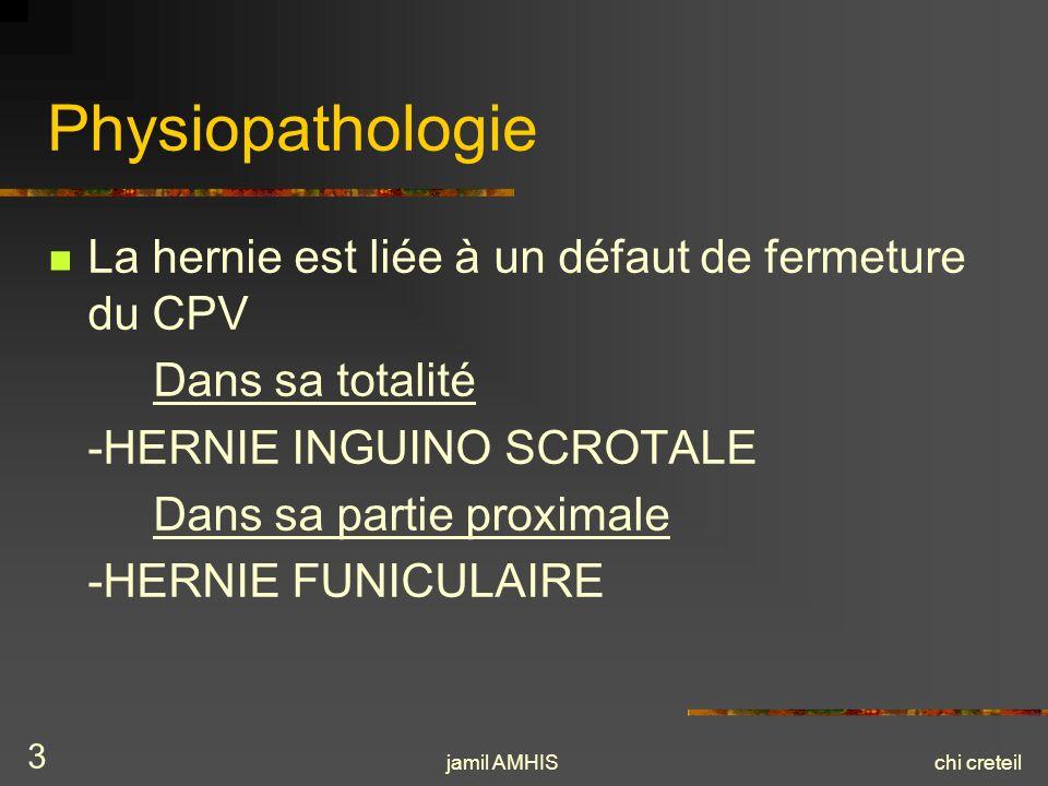 Physiopathologie La hernie est liée à un défaut de fermeture du CPV