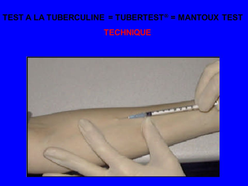 TEST A LA TUBERCULINE = TUBERTEST = MANTOUX TEST