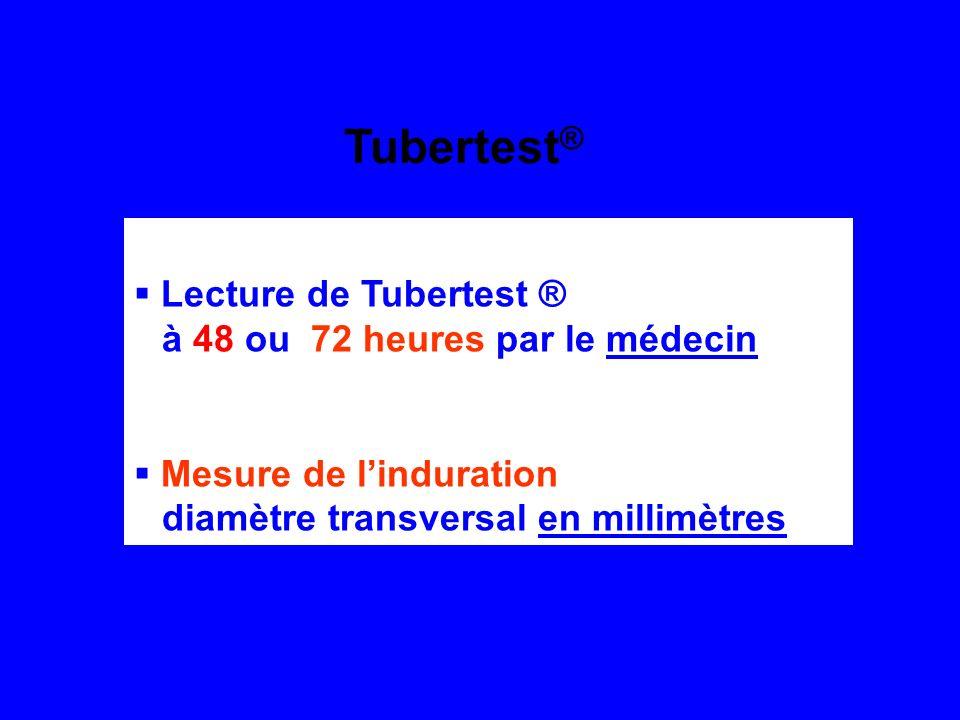 Tubertest® Lecture de Tubertest ® à 48 ou 72 heures par le médecin