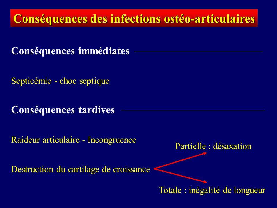 Conséquences des infections ostéo-articulaires