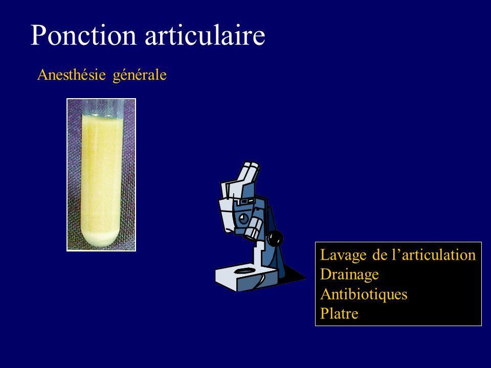 Ponction articulaire Anesthésie générale Lavage de l'articulation