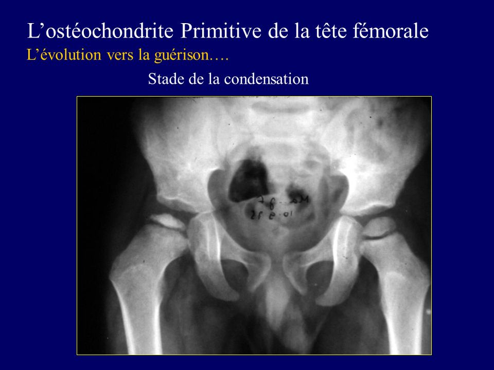L'ostéochondrite Primitive de la tête fémorale