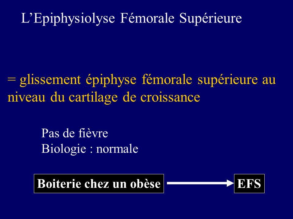 L'Epiphysiolyse Fémorale Supérieure