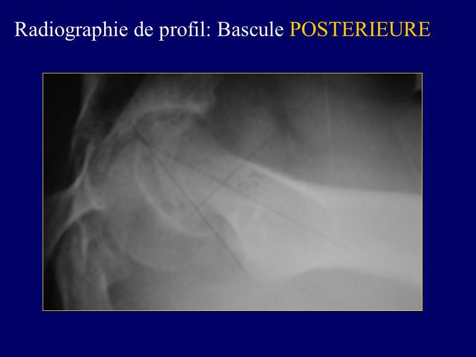 Radiographie de profil: Bascule POSTERIEURE