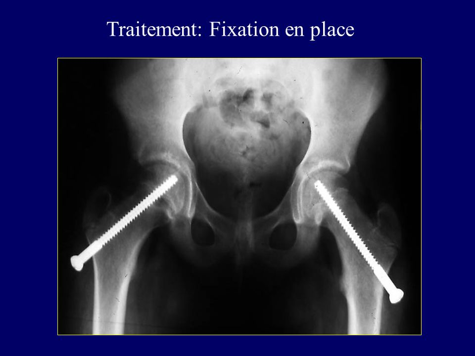 Traitement: Fixation en place