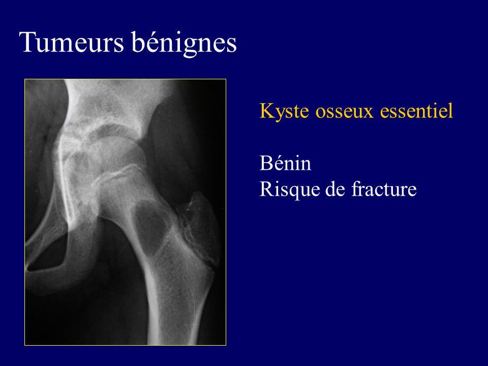 Tumeurs bénignes Kyste osseux essentiel Bénin Risque de fracture