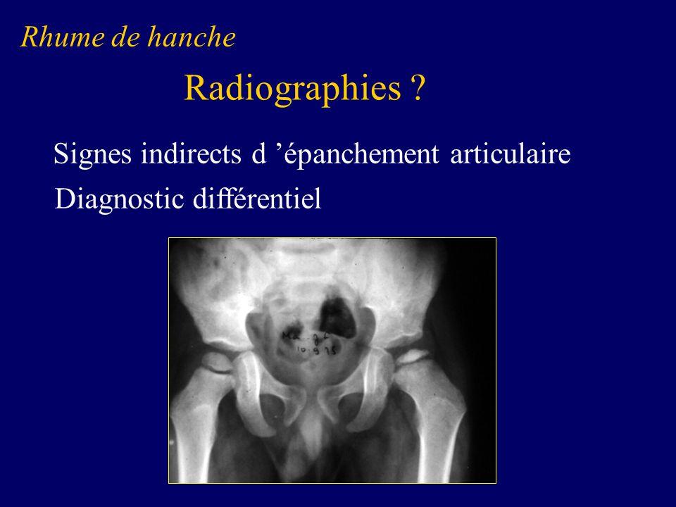 Radiographies Rhume de hanche