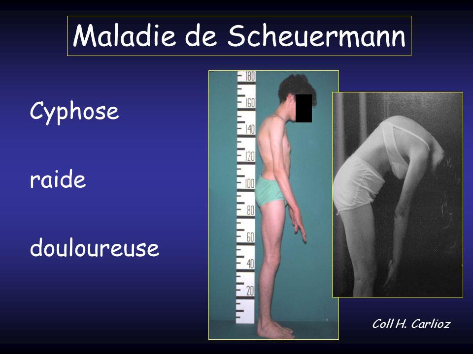 Maladie de Scheuermann