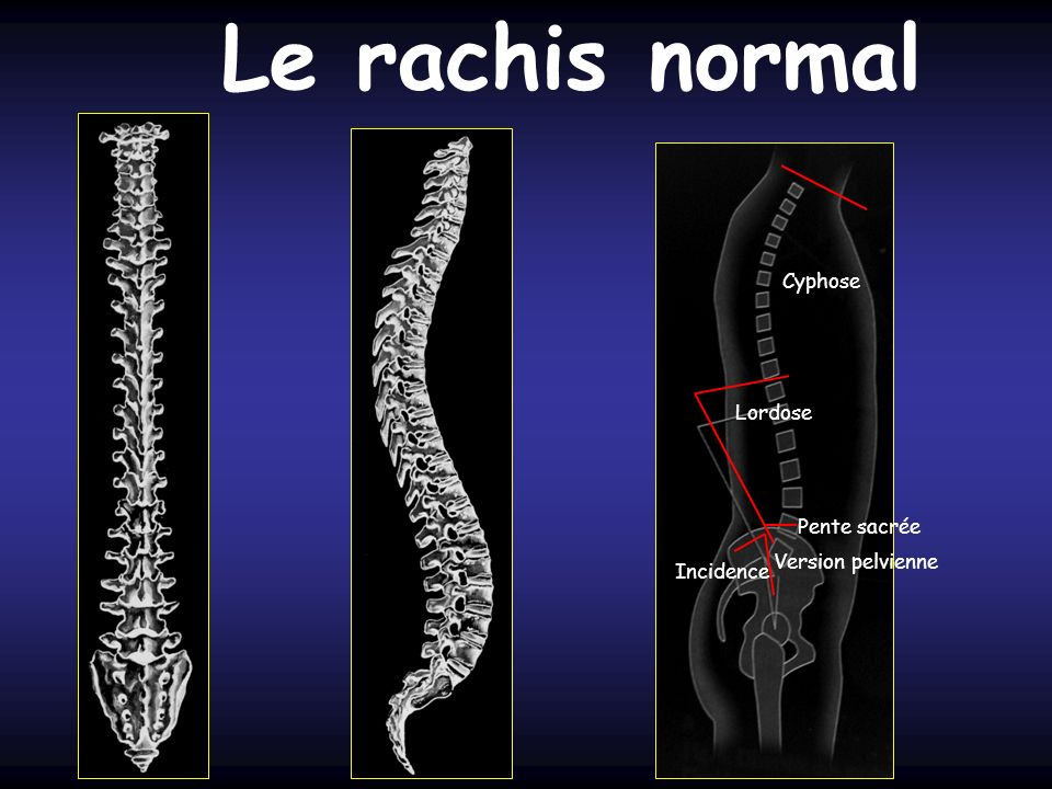 Le rachis normal Cyphose Lordose Pente sacrée Version pelvienne