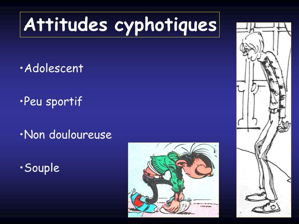 Attitudes cyphotiques