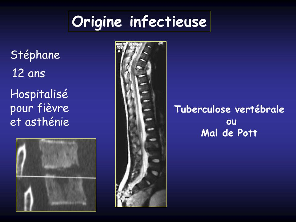 Tuberculose vertébrale