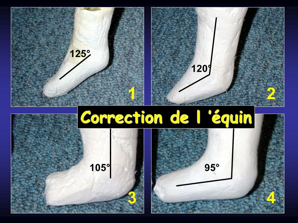 125° 120° 1 2 Correction de l 'équin 105° 95° 3 4