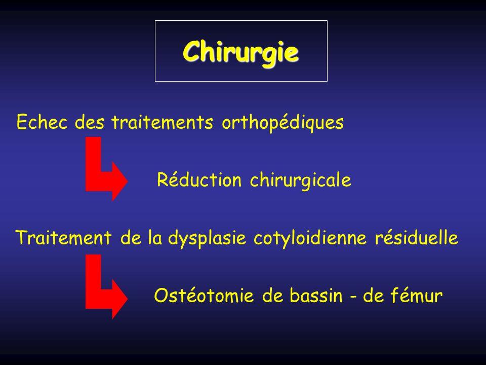 Chirurgie Echec des traitements orthopédiques Réduction chirurgicale