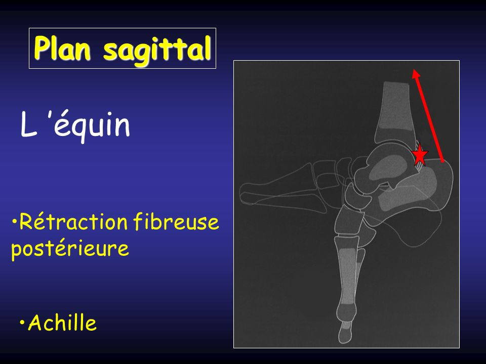 Plan sagittal L 'équin Rétraction fibreuse postérieure Achille