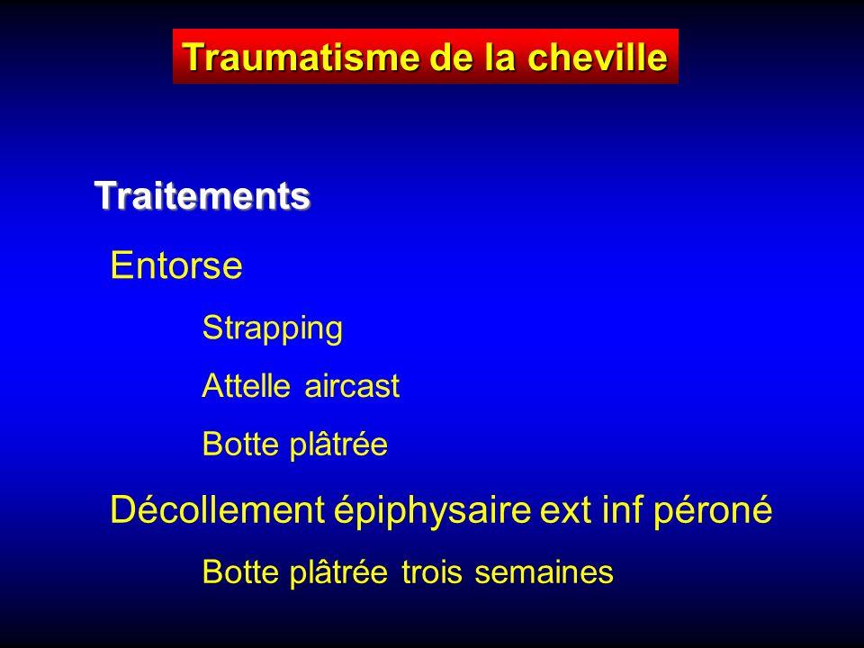 Traumatisme de la cheville