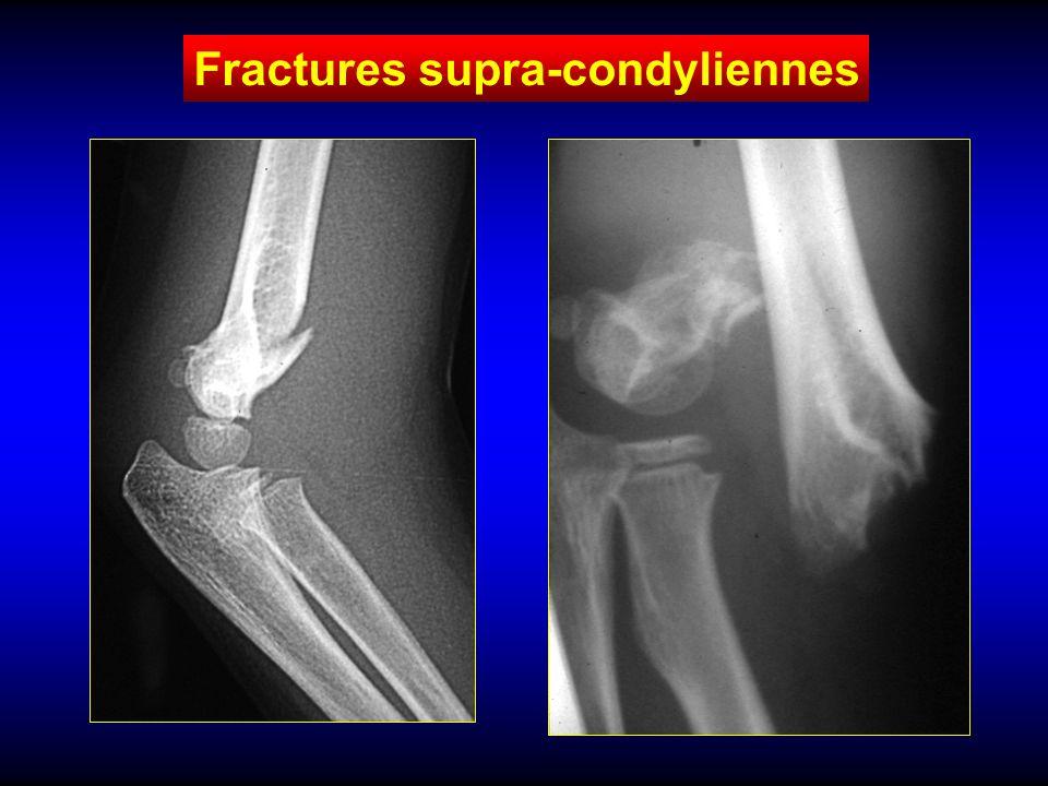 Fractures supra-condyliennes