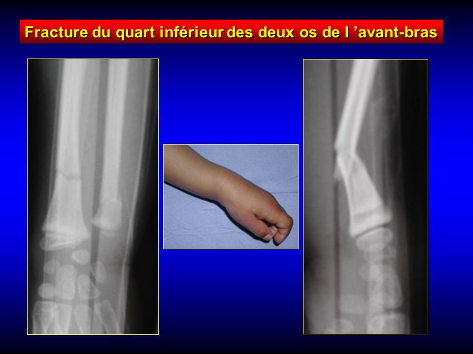 Fracture du quart inférieur des deux os de l 'avant-bras