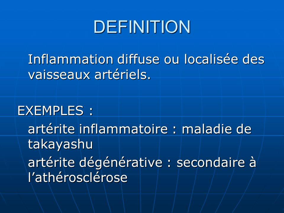 DEFINITION Inflammation diffuse ou localisée des vaisseaux artériels.
