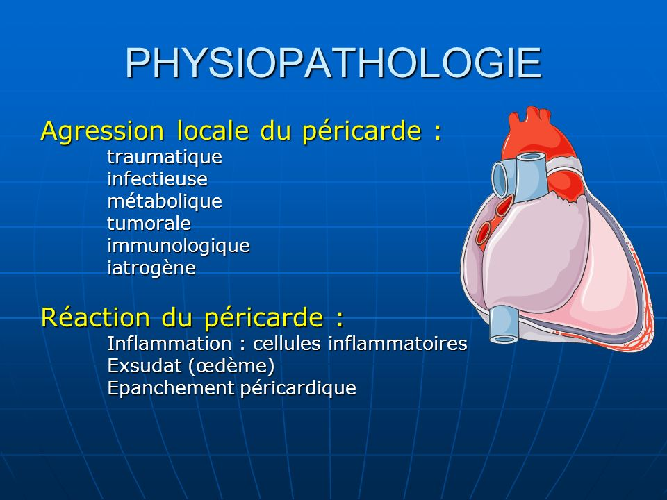 PHYSIOPATHOLOGIE Agression locale du péricarde :