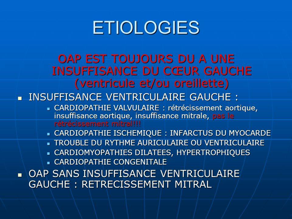 ETIOLOGIES OAP EST TOUJOURS DU A UNE INSUFFISANCE DU CŒUR GAUCHE (ventricule et/ou oreillette) INSUFFISANCE VENTRICULAIRE GAUCHE :