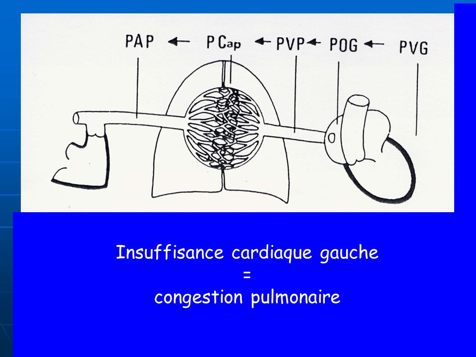 Insuffisance cardiaque gauche = congestion pulmonaire
