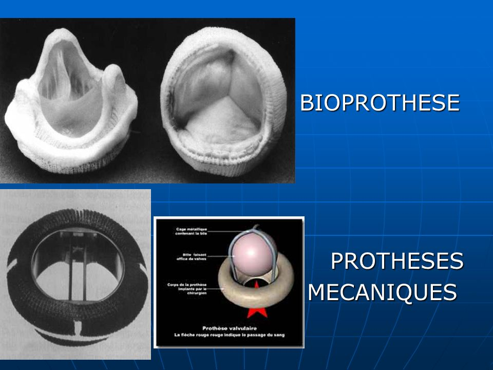 BIOPROTHESE PROTHESES MECANIQUES