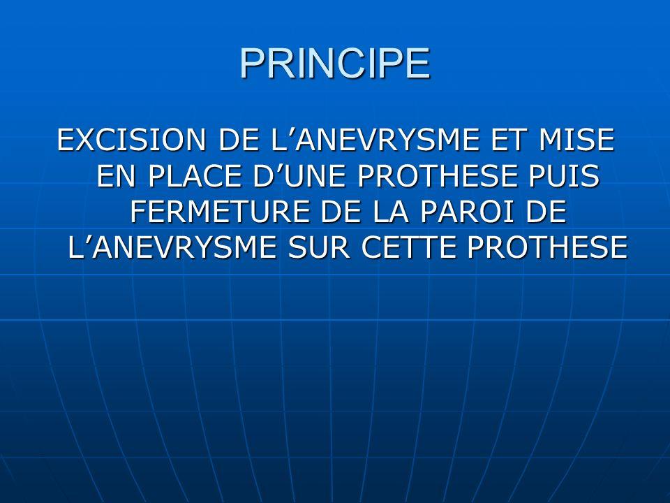 PRINCIPE EXCISION DE L'ANEVRYSME ET MISE EN PLACE D'UNE PROTHESE PUIS FERMETURE DE LA PAROI DE L'ANEVRYSME SUR CETTE PROTHESE.