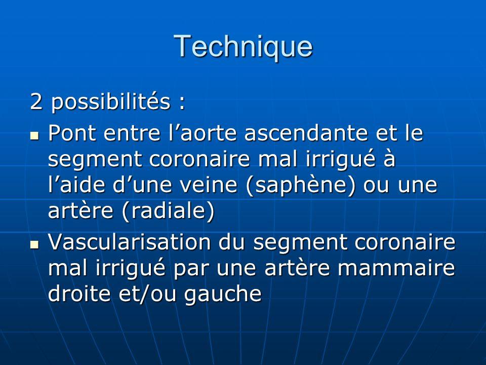 Technique 2 possibilités :