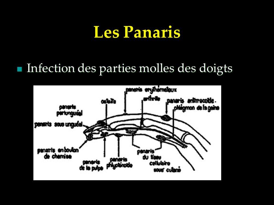 Les Panaris Infection des parties molles des doigts